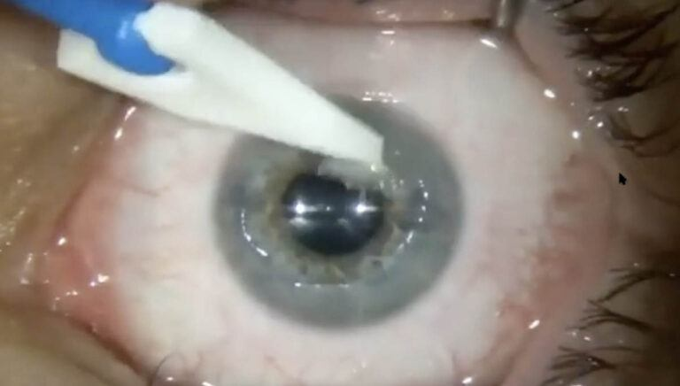 Abrasio in Slit lamp CXL